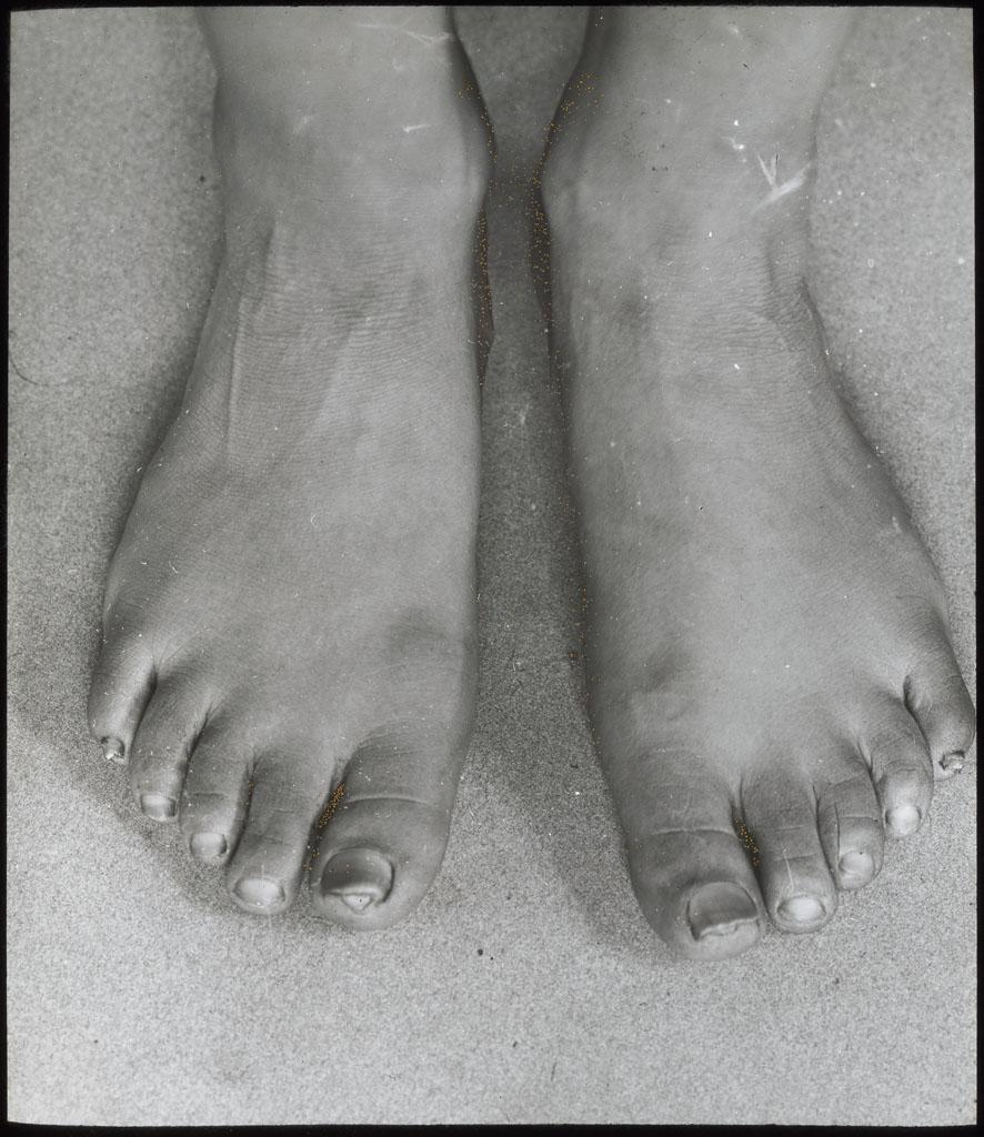 Donald Baxter MacMillan; Ah-ning-ya's feet. Age 35 [on lantern slide: Feet of Ahl-ning-wah]; 1913-1917; image; glass; 8.26 cm x 10.16 cm (3 1/4 in. x 4 in.); TGM; North America